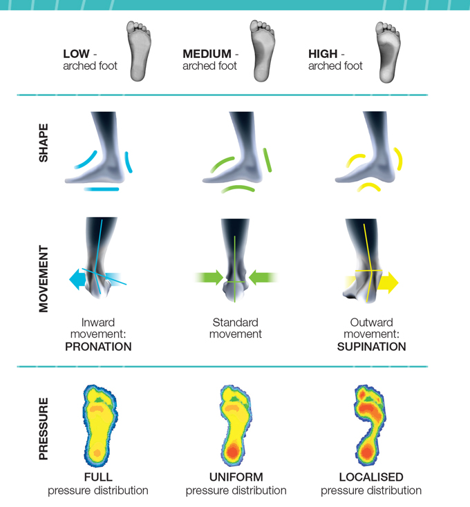 correct arch support